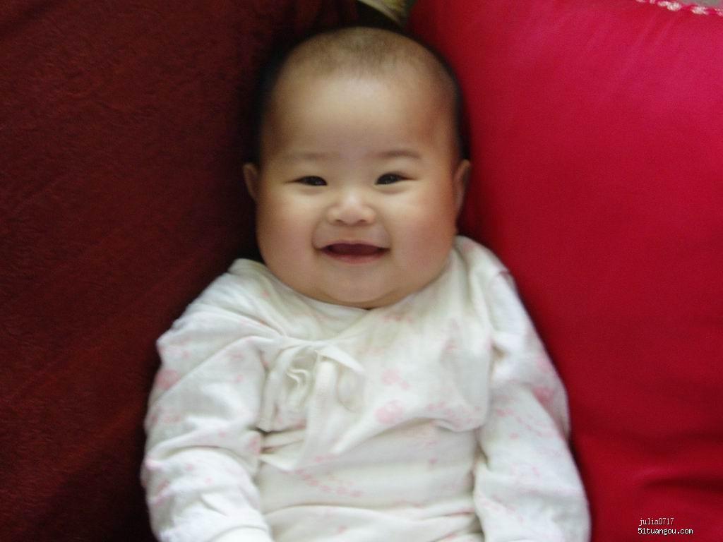 宝宝头发稀少,尤其额头两侧几乎不长,是什么原因