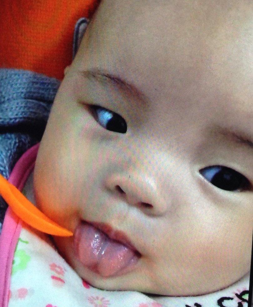 舌系带短图片 让大家判断下是不是舌系带短 育儿问答 宝宝树