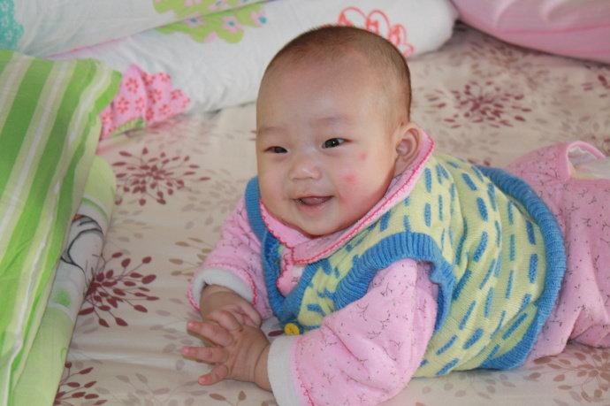 2个半月宝宝头上湿疹